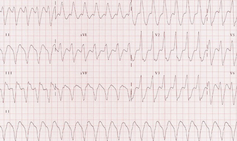 Supravenrical Tachycardia